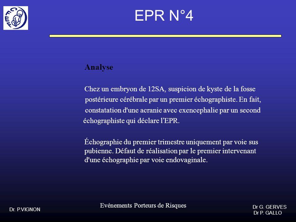 Dr. P.VIGNON Dr G. GERVES Dr P. GALLO Evénements Porteurs de Risques EPR N°4 Analyse Chez un embryon de 12SA, suspicion de kyste de la fosse postérieu