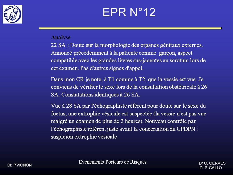 Dr. P.VIGNON Dr G. GERVES Dr P. GALLO Evénements Porteurs de Risques EPR N°12 Analyse 22 SA : Doute sur la morphologie des organes génitaux externes.