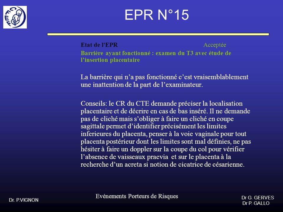 Dr. P.VIGNON Dr G. GERVES Dr P. GALLO Evénements Porteurs de Risques EPR N°15 Etat de l'EPR Acceptée Barrière ayant fonctionné : examen du T3 avec étu