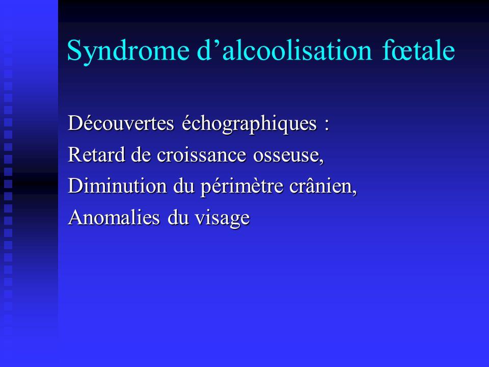 Syndrome dalcoolisation fœtale Découvertes échographiques : Retard de croissance osseuse, Diminution du périmètre crânien, Anomalies du visage