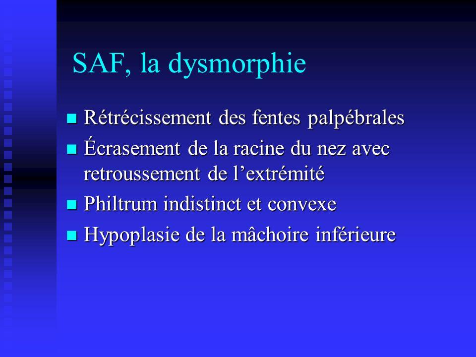 SAF, la dysmorphie Rétrécissement des fentes palpébrales Rétrécissement des fentes palpébrales Écrasement de la racine du nez avec retroussement de le