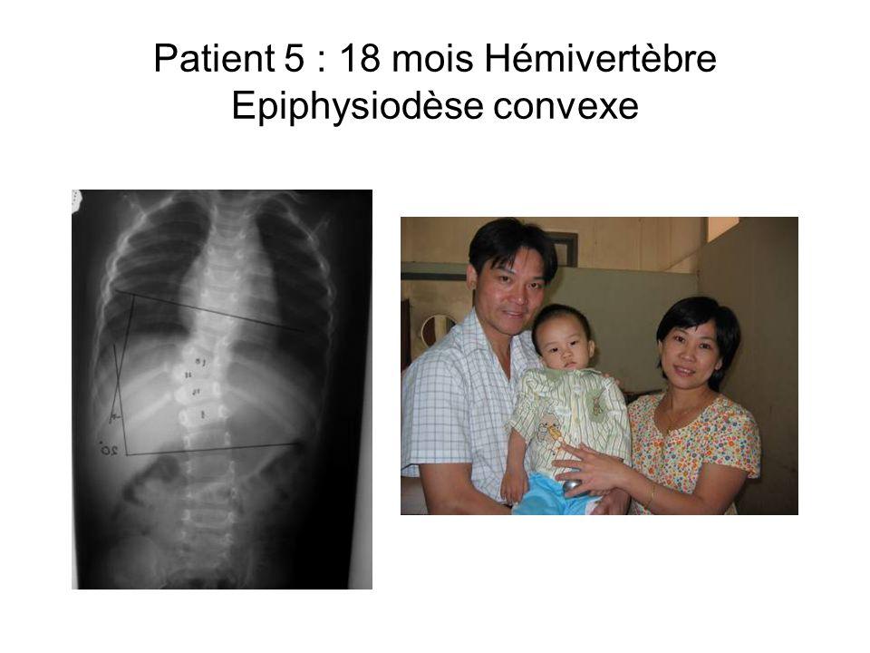 Patient 5 : 18 mois Hémivertèbre Epiphysiodèse convexe