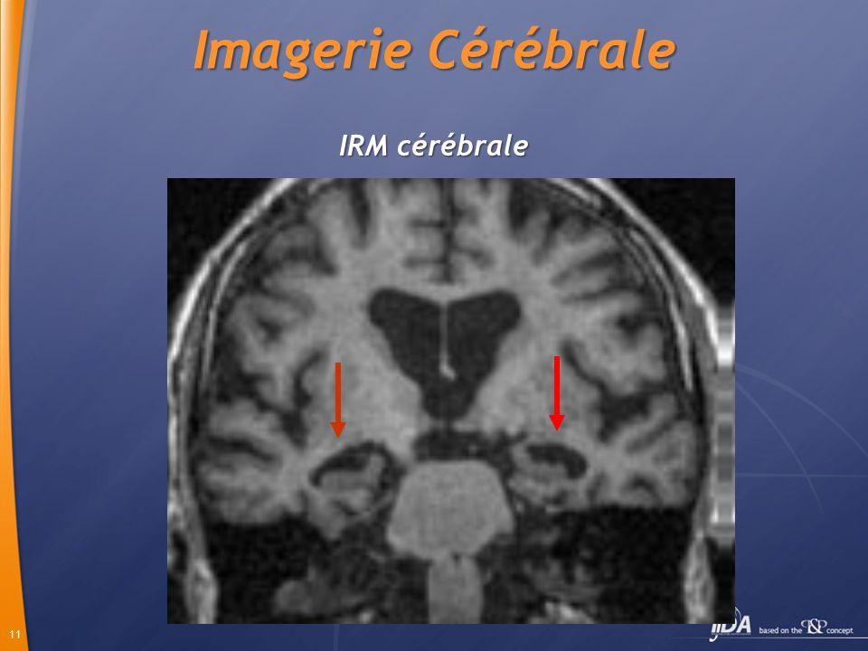 11 IRM cérébrale Imagerie Cérébrale