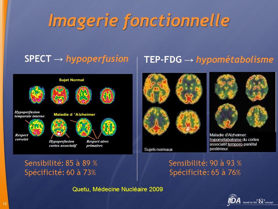 12 Imagerie fonctionnelle SPECT hypoperfusion Sensibilité: 85 à 89 % Spécificité: 60 à 73% TEP-FDG hypométabolisme Sensibilité: 90 à 93 % Spécificité: