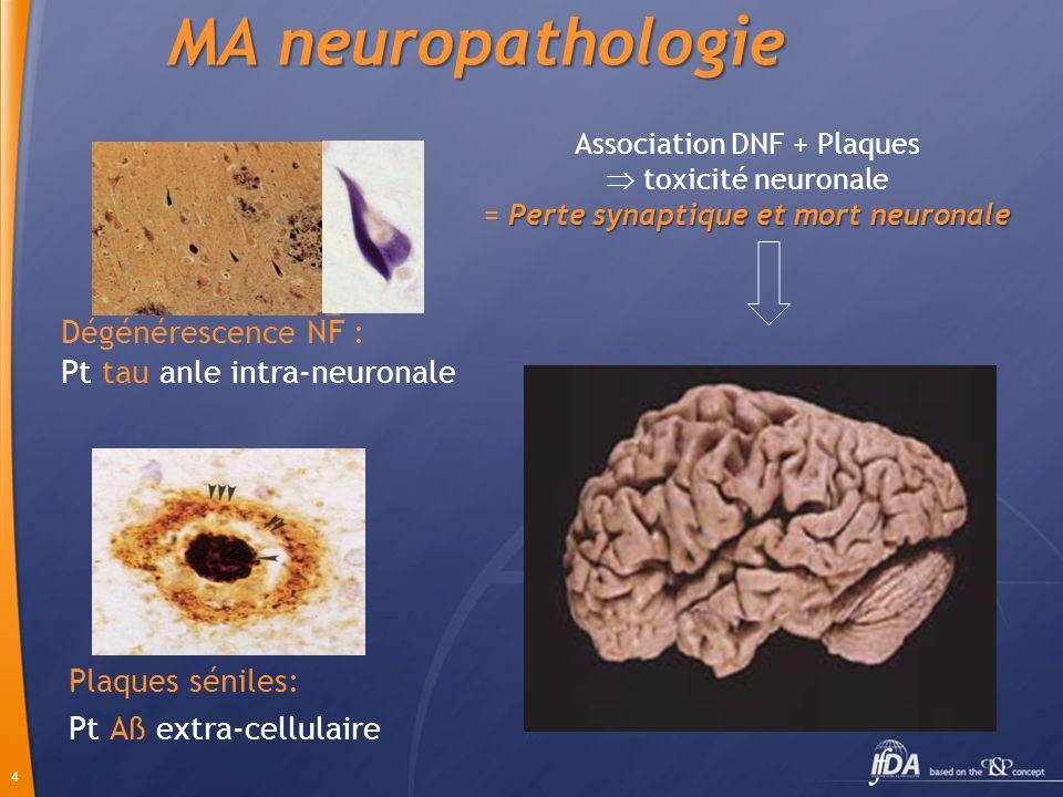 4 MA neuropathologie Plaques séniles: Pt Aß extra-cellulaire Dégénérescence NF : Pt tau anle intra-neuronale Association DNF + Plaques Perte synaptiqu