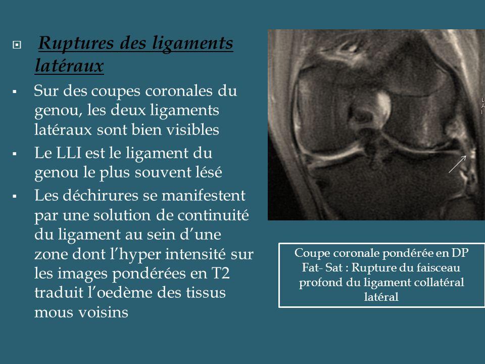 Ruptures des ligaments latéraux Sur des coupes coronales du genou, les deux ligaments latéraux sont bien visibles Le LLI est le ligament du genou le p