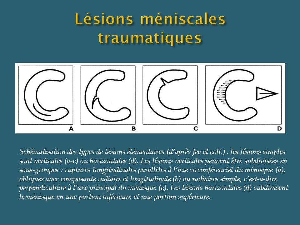 Schématisation des types de lésions élémentaires (daprès Jee et coll.) : les lésions simples sont verticales (a-c) ou horizontales (d). Les lésions ve