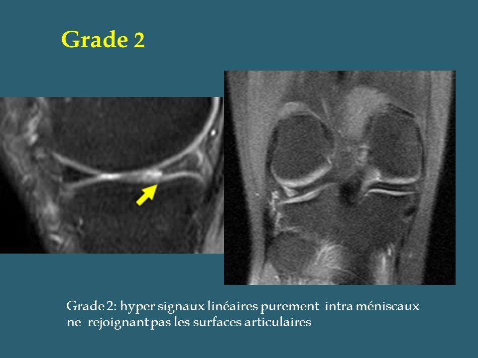 Grade 2: hyper signaux linéaires purement intra méniscaux ne rejoignant pas les surfaces articulaires Grade 2