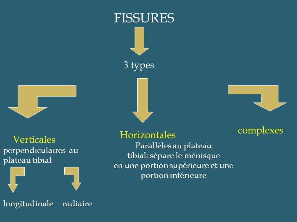 FISSURES 3 types Verticales perpendiculaires au plateau tibial longitudinaleradiaire Horizontales Parallèles au plateau tibial: sépare le ménisque en