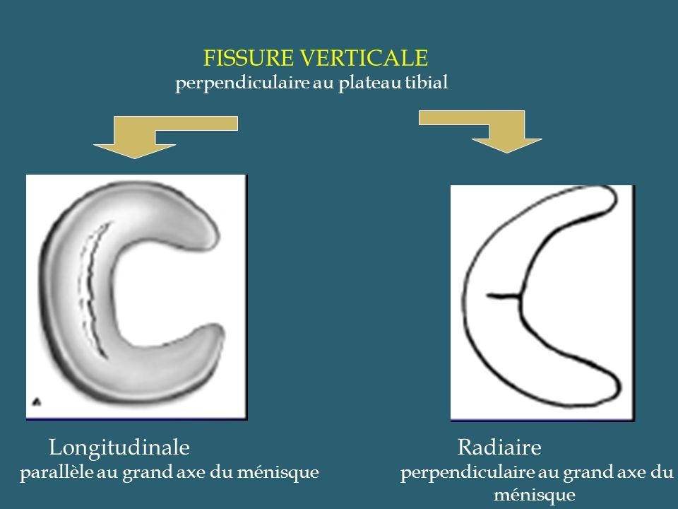 FISSURE VERTICALE perpendiculaire au plateau tibial Longitudinale parallèle au grand axe du ménisque Radiaire perpendiculaire au grand axe du ménisque