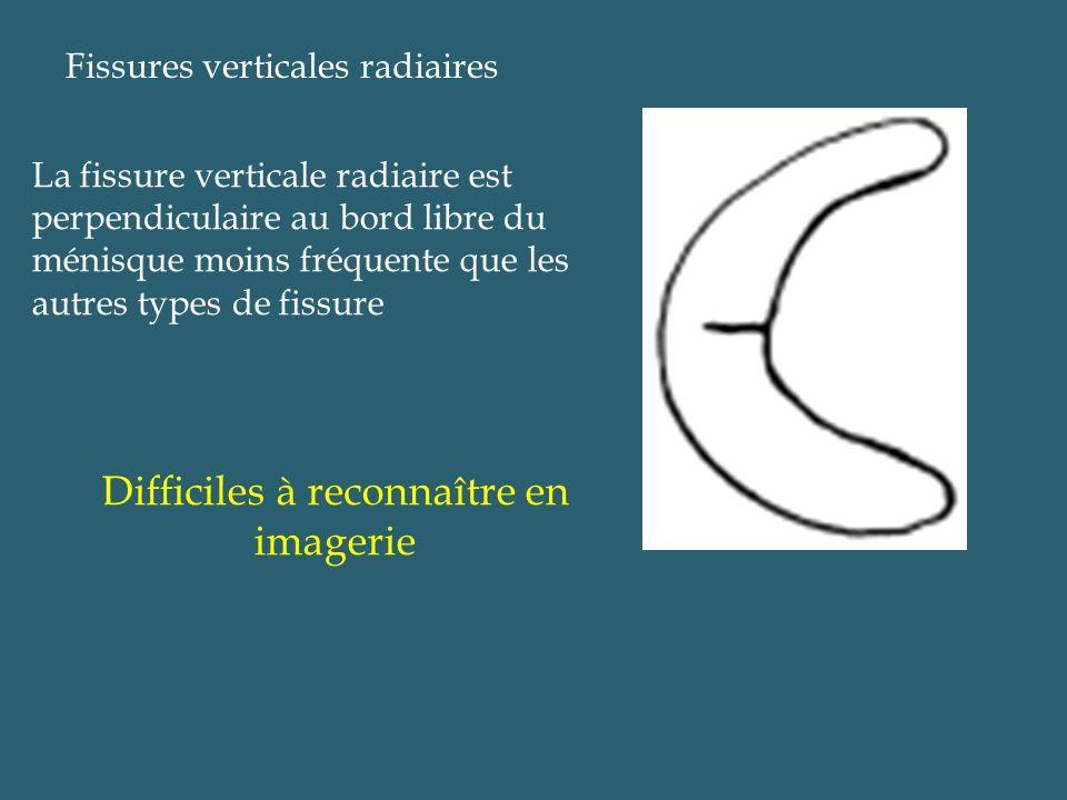 Fissures verticales radiaires La fissure verticale radiaire est perpendiculaire au bord libre du ménisque moins fréquente que les autres types de fiss