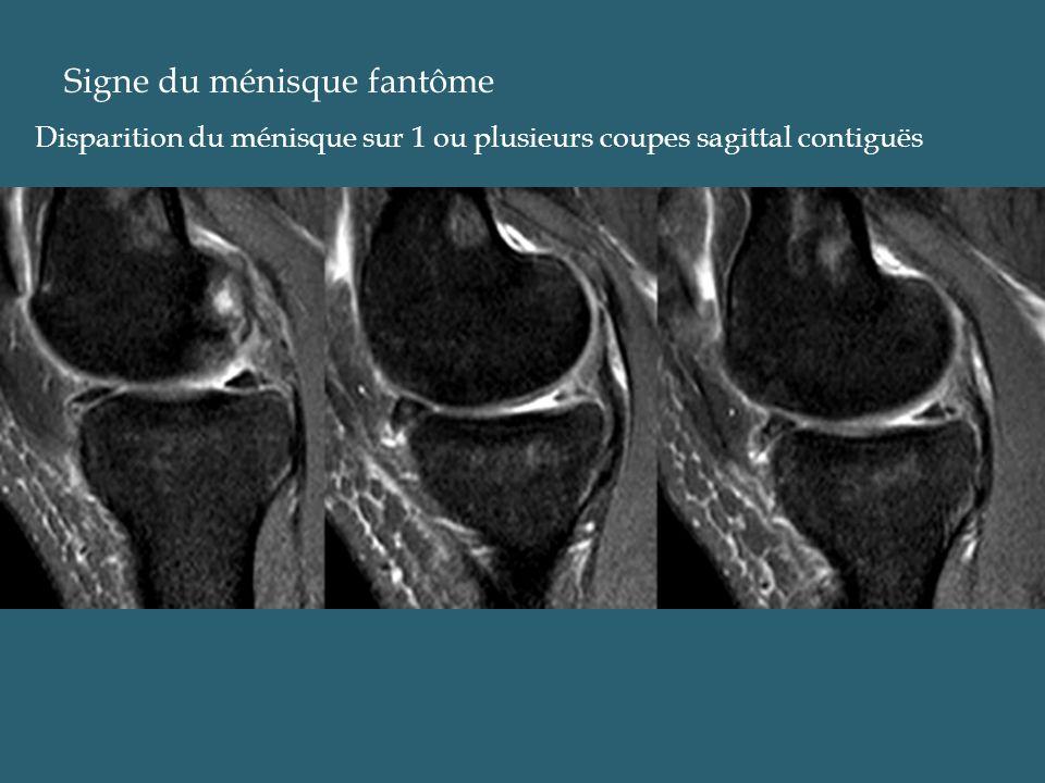 Signe du ménisque fantôme Disparition du ménisque sur 1 ou plusieurs coupes sagittal contiguës