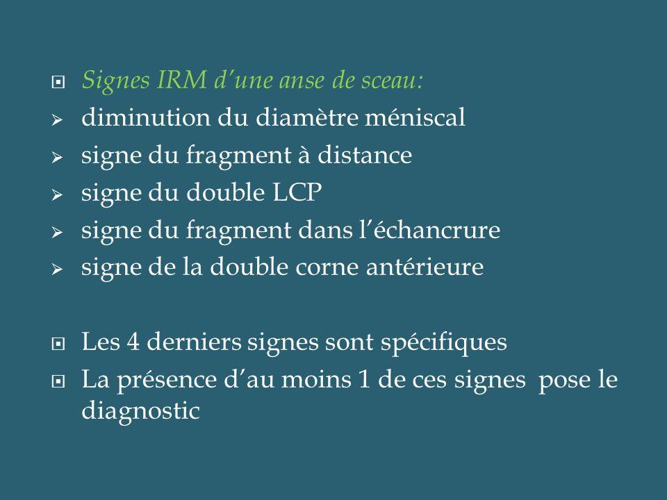 Signes IRM dune anse de sceau: diminution du diamètre méniscal signe du fragment à distance signe du double LCP signe du fragment dans léchancrure sig