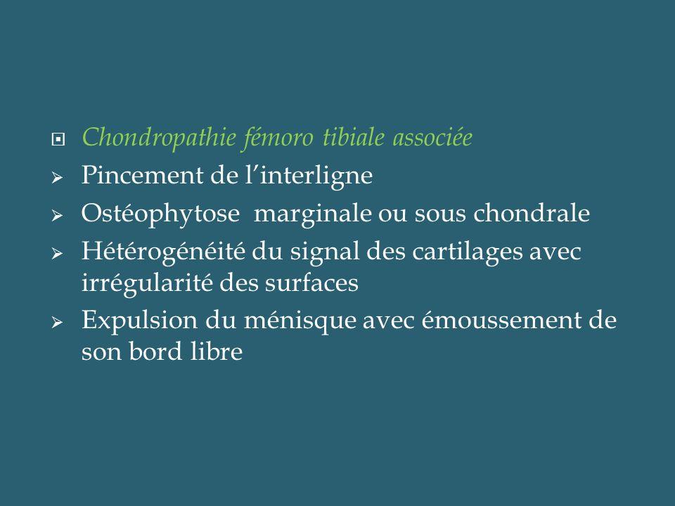 Chondropathie fémoro tibiale associée Pincement de linterligne Ostéophytose marginale ou sous chondrale Hétérogénéité du signal des cartilages avec ir