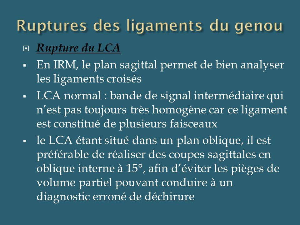 Signes IRM directs de rupture de LCA Augmentation diffuse du signal en T1 et T2 avec élargissement du ligament LCA horizontalisé LCA non visible Discontinuité du LCA LCA verticalisé Coupe sagittale médiane DP FAT SAT : rupture complète du LCA