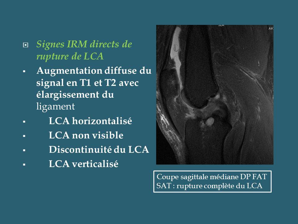 Signes IRM directs de rupture de LCA Augmentation diffuse du signal en T1 et T2 avec élargissement du ligament LCA horizontalisé LCA non visible Disco