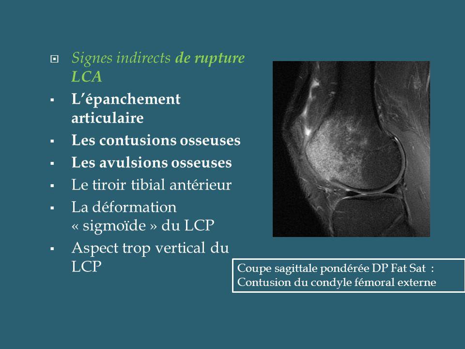 Ruptures partielles du LCA 10 à 35 % des lésions du LCA De diagnostic +difficile Se traduisent en général par des anomalies de signal et éventuellement de morphologie du LCA sans perte de son orientation Coupes sagittales médianes pondérées en DP Fat Sat (a) en et en T1 (b): Aspect feuilleté en hyper signal DP du segment distal du ligament croisé antérieur a b