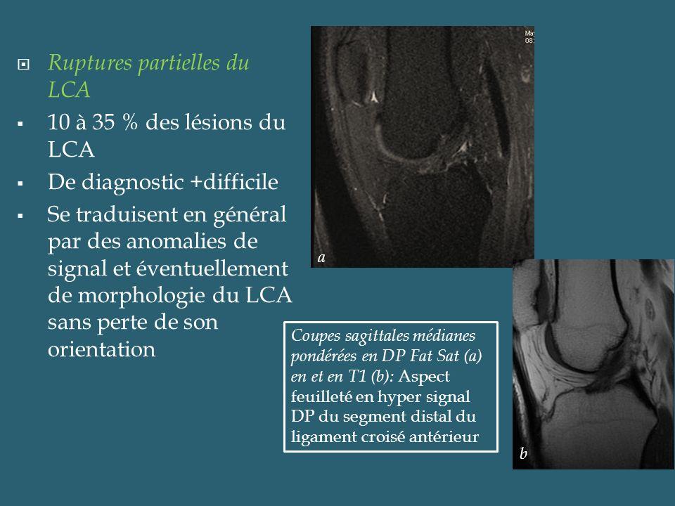 Ruptures partielles du LCA 10 à 35 % des lésions du LCA De diagnostic +difficile Se traduisent en général par des anomalies de signal et éventuellemen