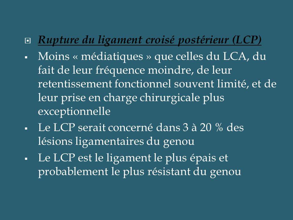 Rupture du ligament croisé postérieur (LCP) Moins « médiatiques » que celles du LCA, du fait de leur fréquence moindre, de leur retentissement fonctio