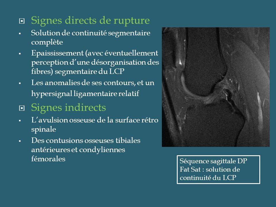 Ruptures des ligaments latéraux Sur des coupes coronales du genou, les deux ligaments latéraux sont bien visibles Le LLI est le ligament du genou le plus souvent lésé Les déchirures se manifestent par une solution de continuité du ligament au sein dune zone dont lhyper intensité sur les images pondérées en T2 traduit loedème des tissus mous voisins Coupe coronale pondérée en DP Fat- Sat : Rupture du faisceau profond du ligament collatéral latéral