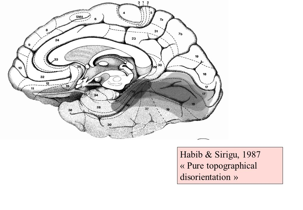Habib & Sirigu, 1987 « Pure topographical disorientation »