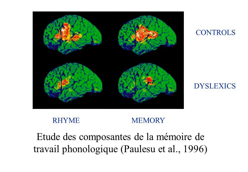 Etude des composantes de la mémoire de travail phonologique (Paulesu et al., 1996) RHYMEMEMORY CONTROLS DYSLEXICS