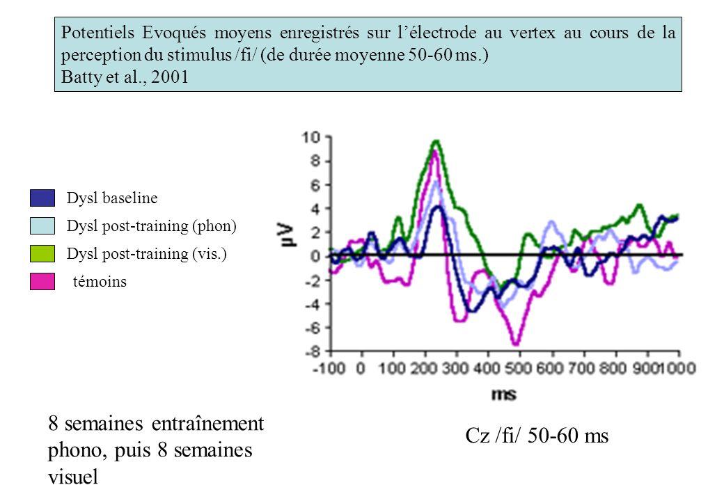 Cz /fi/ 50-60 ms Potentiels Evoqués moyens enregistrés sur lélectrode au vertex au cours de la perception du stimulus /fi/ (de durée moyenne 50-60 ms.