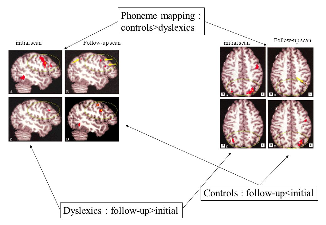 Phoneme mapping : controls>dyslexics Dyslexics : follow-up>initial Controls : follow-up<initial initial scanFollow-up scaninitial scan Follow-up scan