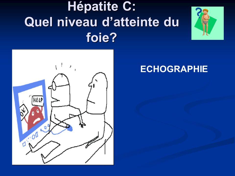 Hépatite C: Quel niveau datteinte du foie? ECHOGRAPHIE