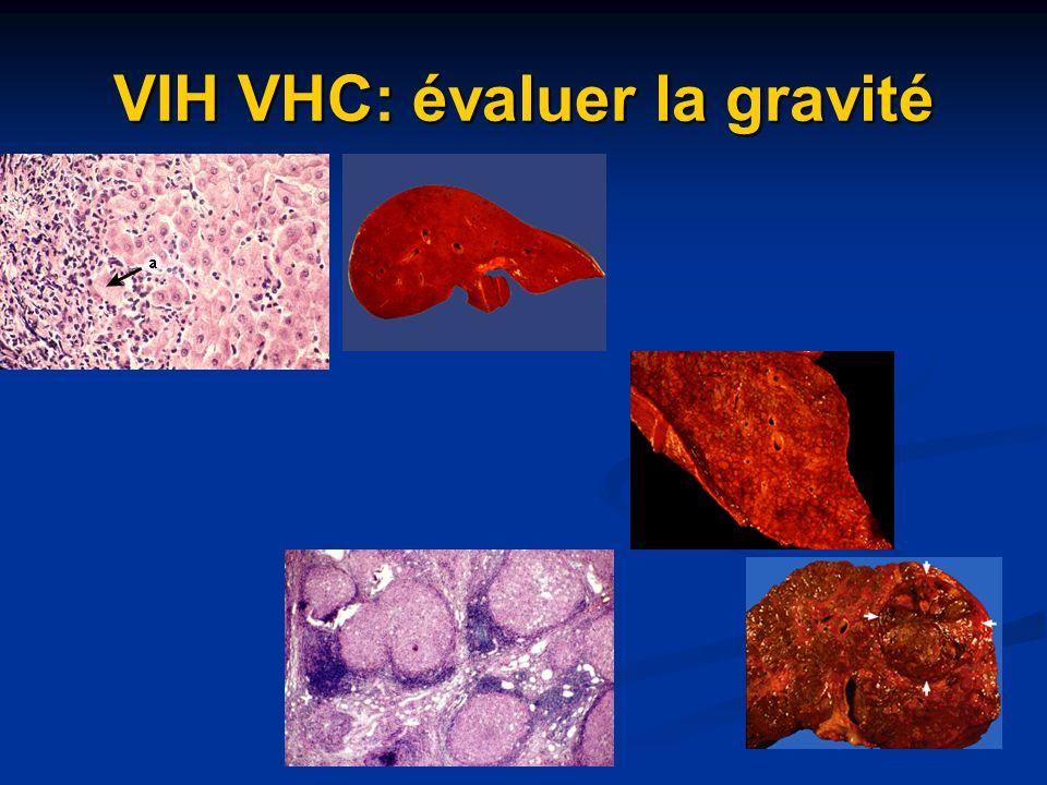 VIH VHC: évaluer la gravité