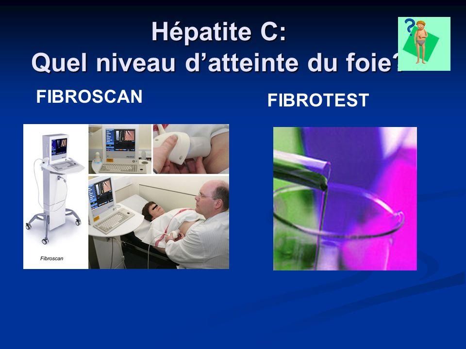 Hépatite C: Quel niveau datteinte du foie? FIBROTEST FIBROSCAN