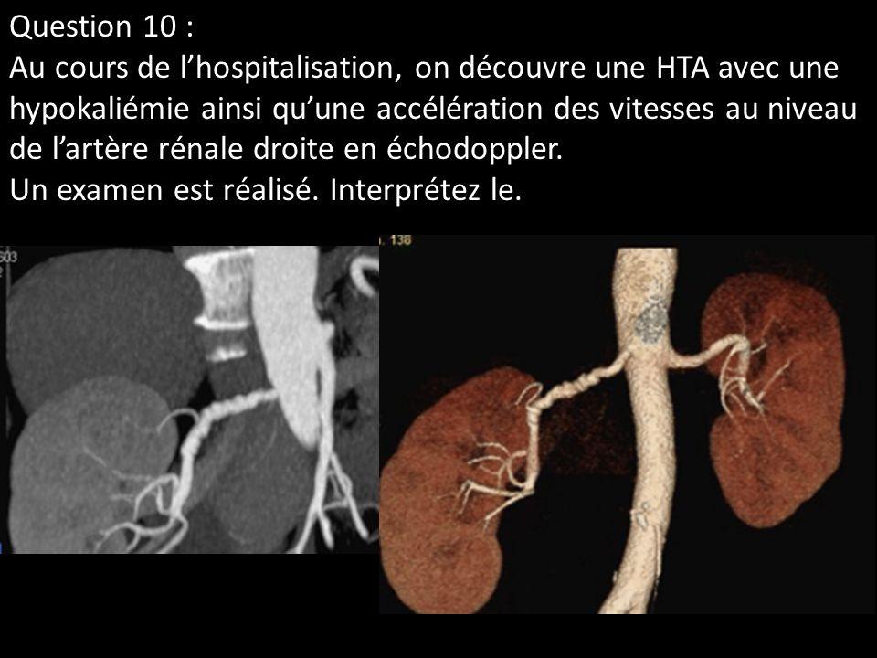 Question 10 : Au cours de lhospitalisation, on découvre une HTA avec une hypokaliémie ainsi quune accélération des vitesses au niveau de lartère rénal