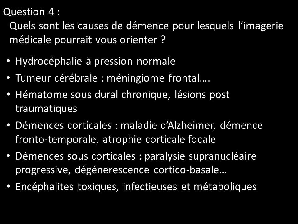 Question 4 : Quels sont les causes de démence pour lesquels limagerie médicale pourrait vous orienter ? Hydrocéphalie à pression normale Tumeur cérébr