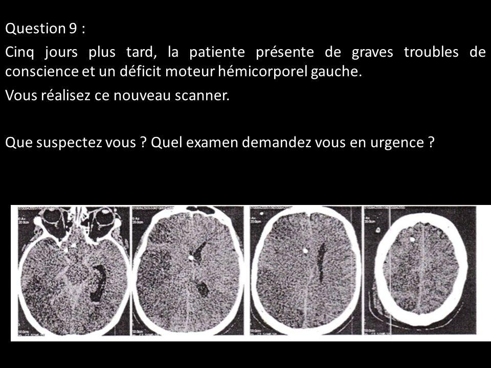 Question 9 : Cinq jours plus tard, la patiente présente de graves troubles de conscience et un déficit moteur hémicorporel gauche. Vous réalisez ce no