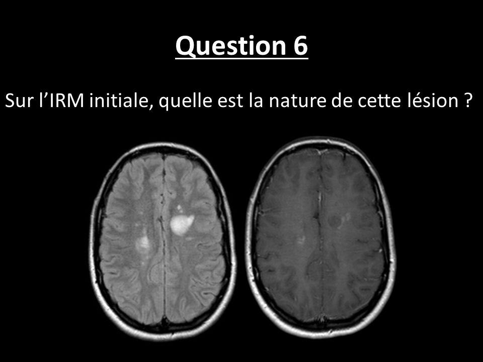 Question 6 Sur lIRM initiale, quelle est la nature de cette lésion ?