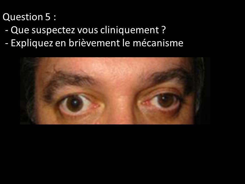 Question 5 : - Que suspectez vous cliniquement ? - Expliquez en brièvement le mécanisme