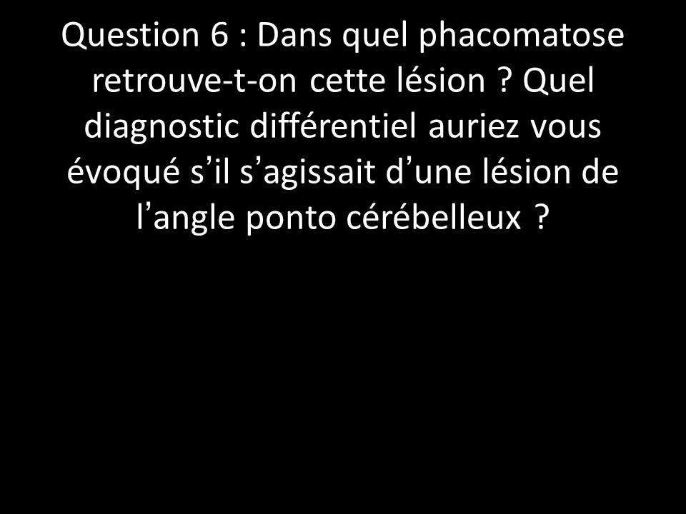 Question 6 : Dans quel phacomatose retrouve-t-on cette lésion ? Quel diagnostic différentiel auriez vous évoqué sil sagissait dune lésion de langle po