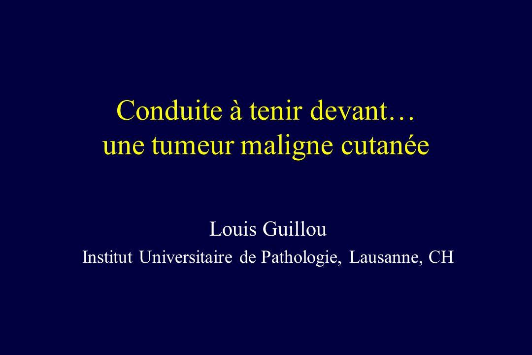 Conduite à tenir devant… une tumeur maligne cutanée Louis Guillou Institut Universitaire de Pathologie, Lausanne, CH