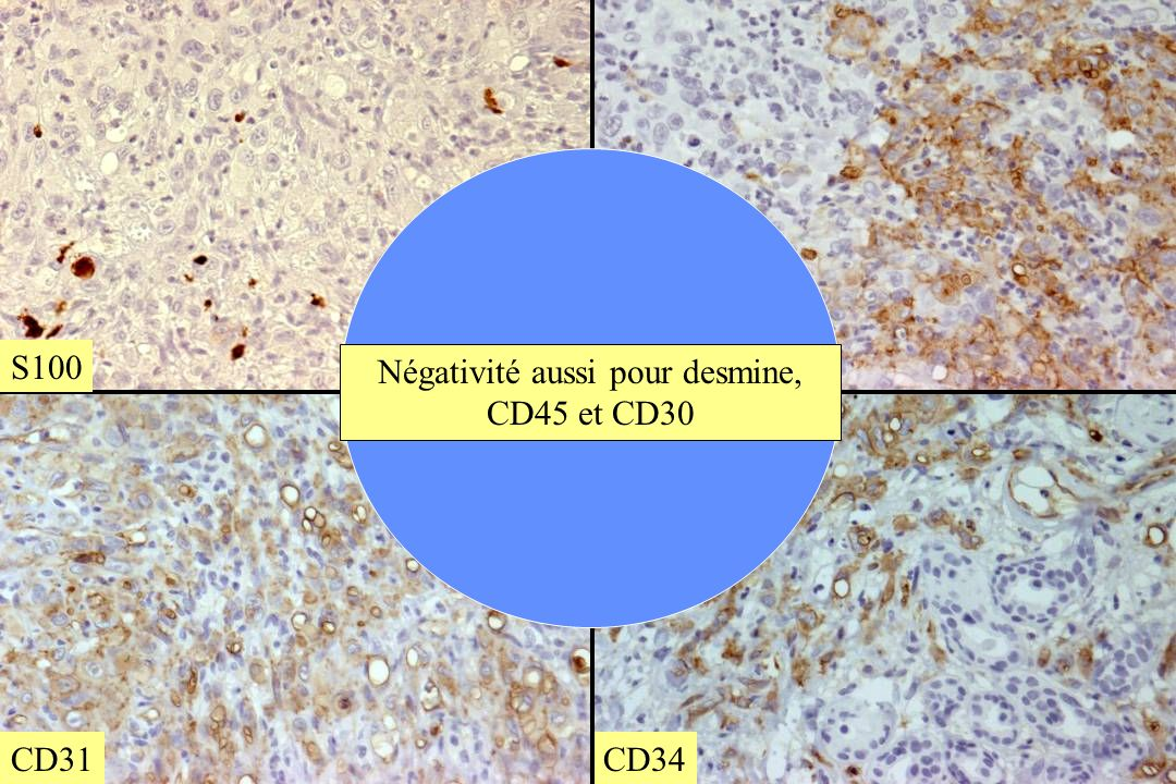 CD34 CD31 S100 Négativité aussi pour desmine, CD45 et CD30
