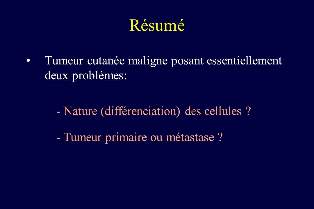Résumé Tumeur cutanée maligne posant essentiellement deux problèmes: - Nature (différenciation) des cellules ? - Tumeur primaire ou métastase ?