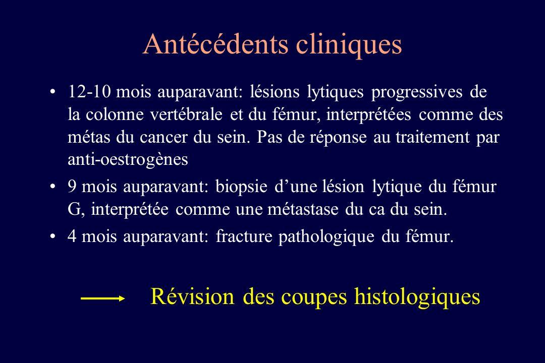 Antécédents cliniques 12-10 mois auparavant: lésions lytiques progressives de la colonne vertébrale et du fémur, interprétées comme des métas du cance