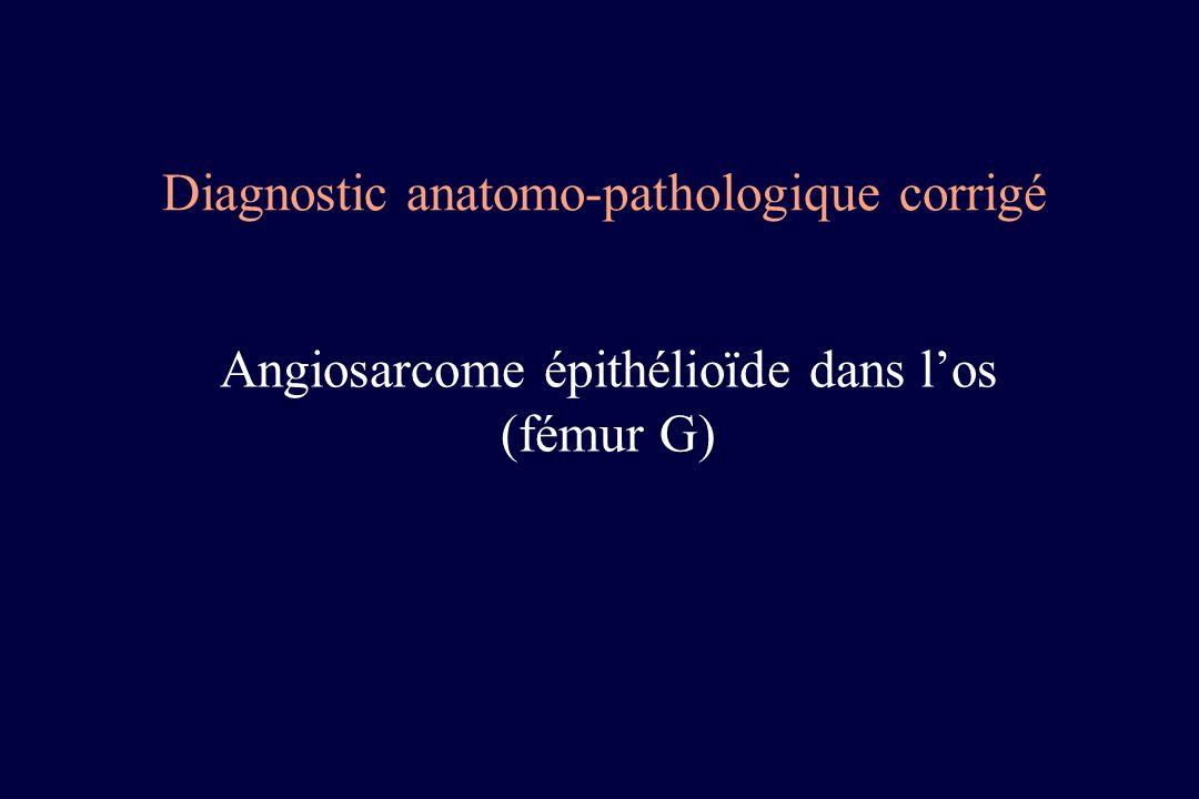 Diagnostic anatomo-pathologique corrigé Angiosarcome épithélioïde dans los (fémur G)