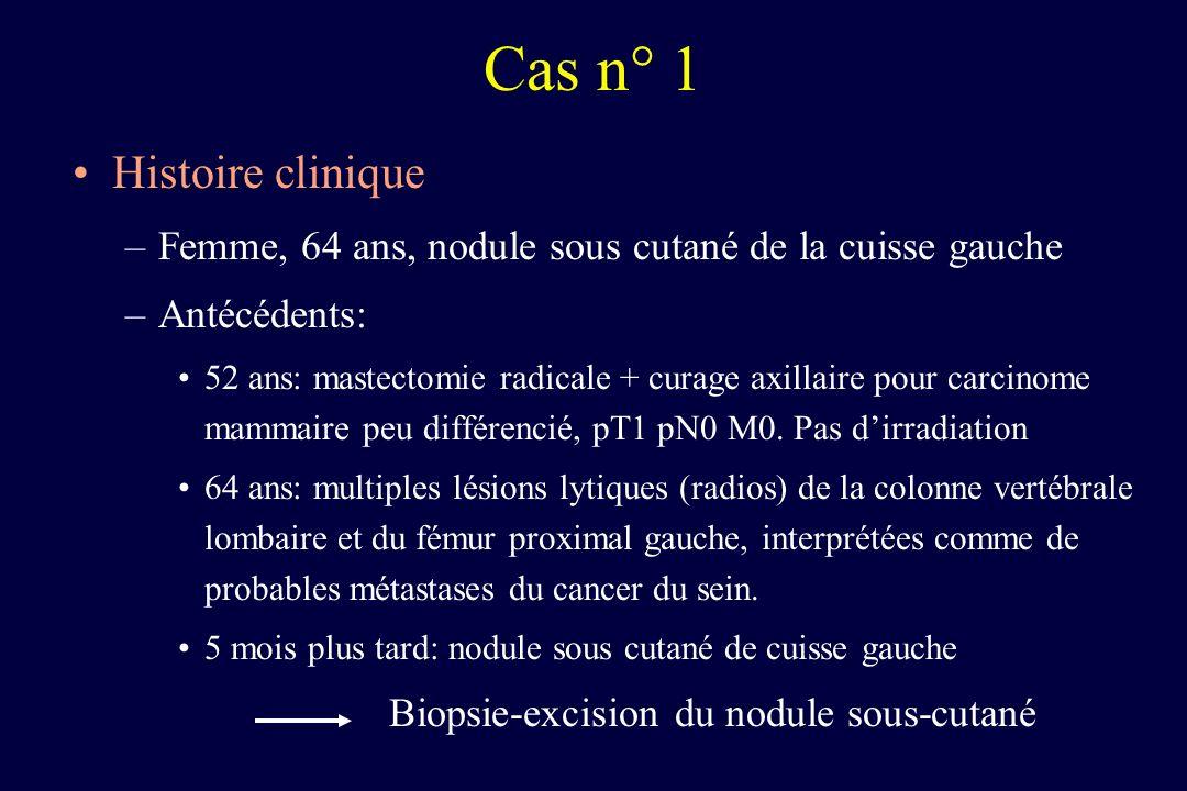 Histoire clinique –Femme, 64 ans, nodule sous cutané de la cuisse gauche –Antécédents: 52 ans: mastectomie radicale + curage axillaire pour carcinome