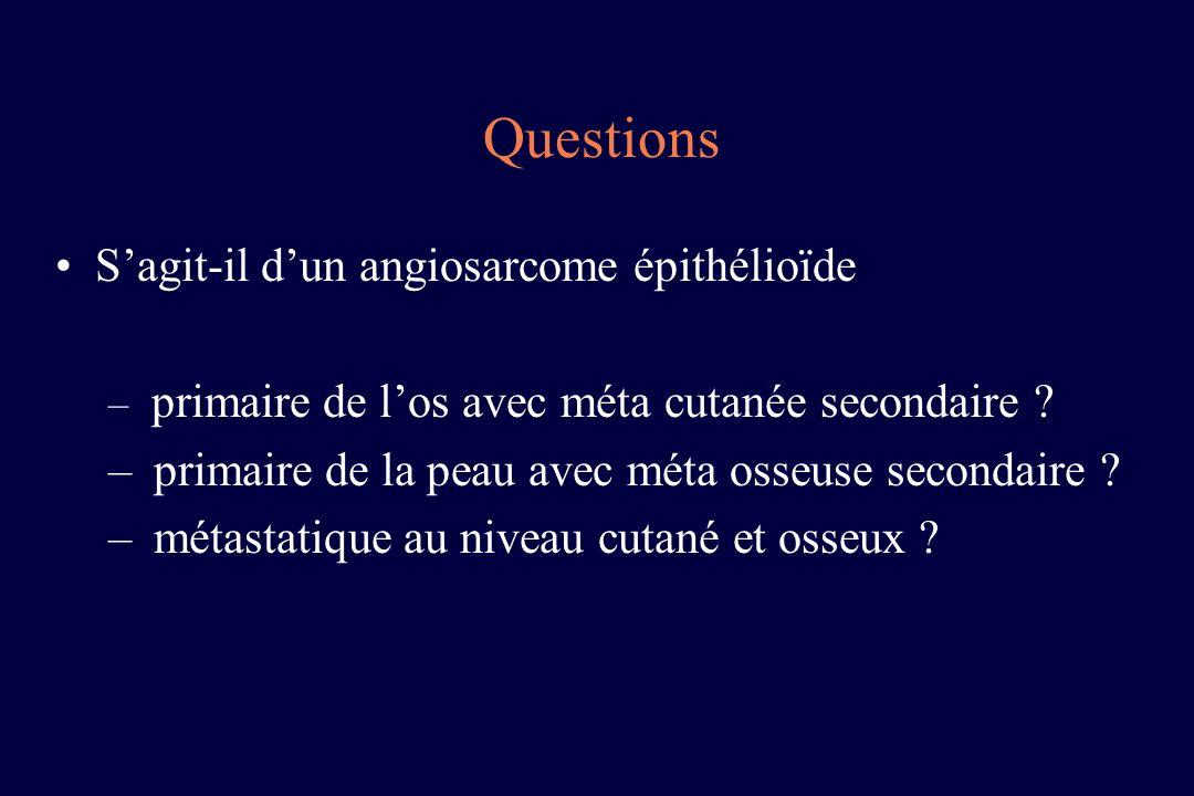 Sagit-il dun angiosarcome épithélioïde – primaire de los avec méta cutanée secondaire ? – primaire de la peau avec méta osseuse secondaire ? – métasta