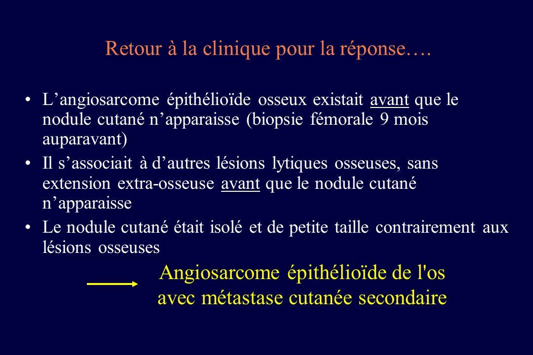 Langiosarcome épithélioïde osseux existait avant que le nodule cutané napparaisse (biopsie fémorale 9 mois auparavant) Il sassociait à dautres lésions