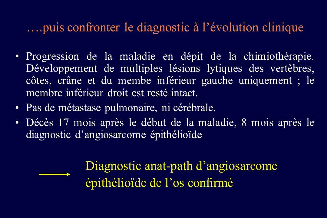 ….puis confronter le diagnostic à lévolution clinique Progression de la maladie en dépit de la chimiothérapie. Développement de multiples lésions lyti