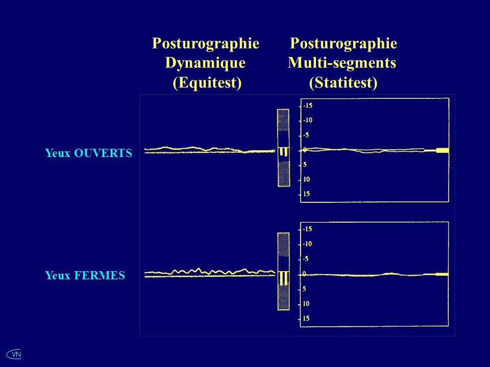 Yeux OUVERTS Yeux FERMES Posturographie Dynamique (Equitest) Posturographie Multi-segments (Statitest)