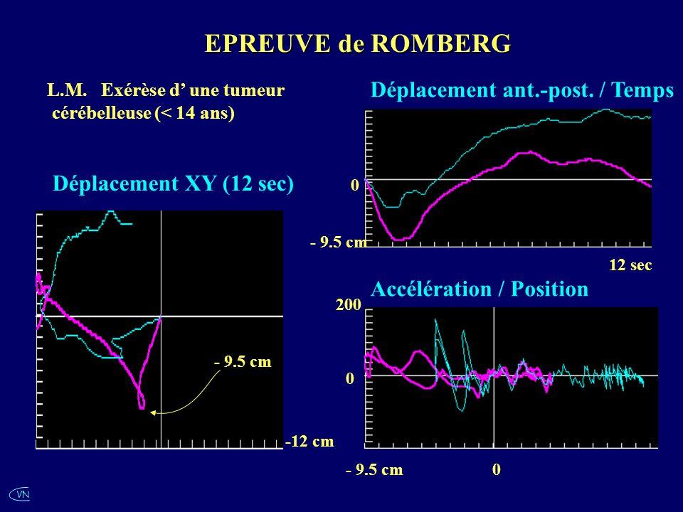 VN L.M. Exérèse d une tumeur cérébelleuse (< 14 ans) -12 cm - 9.5 cm Déplacement XY (12 sec) 0 - 9.5 cm 0 Déplacement ant.-post. / Temps Accélération