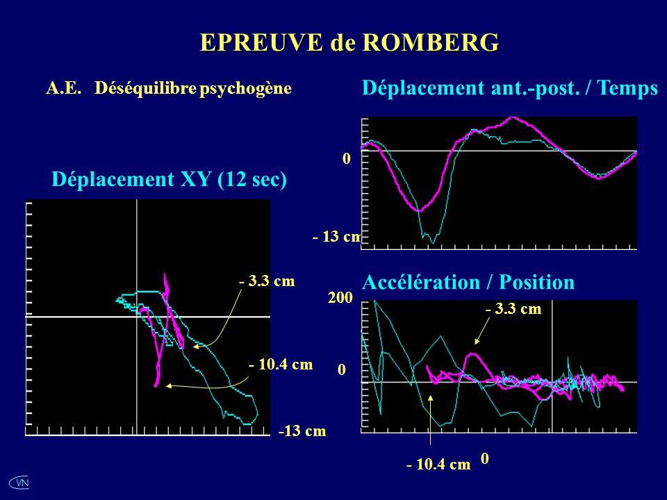 VN A.E. Déséquilibre psychogène -13 cm - 10.4 cm 0 - 13 cm 0 Déplacement ant.-post. / Temps Accélération / Position EPREUVE de ROMBERG 200 0 - 10.4 cm