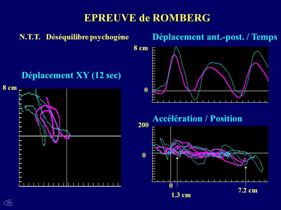 VN N.T.T. Déséquilibre psychogène 8 cm 1.3 cm 0 8 cm 0 Déplacement ant.-post. / Temps Accélération / Position EPREUVE de ROMBERG 200 0 7.2 cm Déplacem